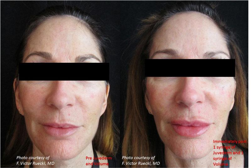JUVÉDERM Voluma TM • Lakes Dermatology
