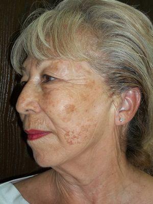 ThreadLift • Lakes Dermatology