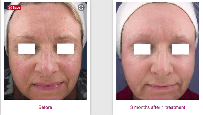 Pigmentation & Fine Lines Greatly Improved