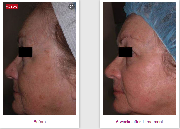 Treat Melasma with CO2RE